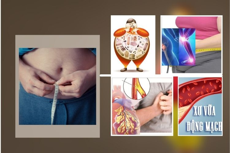 Tác hại của thừa cân béo phì